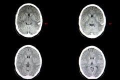 Hemorragia intracerebral do CT fotografia de stock royalty free