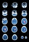 Hemorrhagic κτύπημα Ανίχνευση CT (υπολογισμένη τομογραφία) του εγκεφάλου (γ Στοκ φωτογραφίες με δικαίωμα ελεύθερης χρήσης