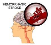 Hemorrhagic κτύπημα διανυσματική απεικόνιση