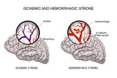 Hemorrhagic and ischemic stroke Stock Photography