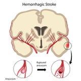 hemorrhagic slaglängd för hjärna Arkivbild