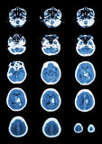 Hemorrhagic Stroke .  CT scan (computed tomography) of brain ( c Royalty Free Stock Photos