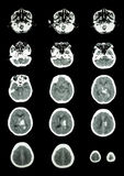 Hemorrhagic Stroke .  CT scan (computed tomography) of brain ( c. Erebrovascular system )  :  Intracerebral hemorrhage at left cerebral hemisphere Stock Photo