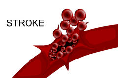 Hemorrhagic stroke. insult. rupture of the vessel Royalty Free Stock Image
