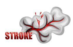 Hemorrhagic stroke. insult. rupture of the vessel Stock Images