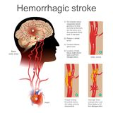 Hemorrhagic stroke. Plaque causing thrombotic stroke torn artery causing intra cerebral. royalty free illustration