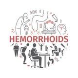 Hemorroïdenbanner, pictogram Infographics Vectortekens voor Webgrafiek stock illustratie