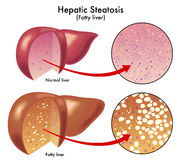 Hepatic steatosis. Medical illustration of the effects of the Hepatic steatosis Royalty Free Stock Image