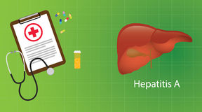 Hepatit a i lever med mikroskopmedicin för medicinsk rapport vektor illustrationer