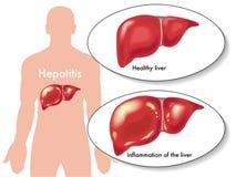 Hepatite Imagem de Stock Royalty Free