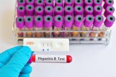 Hepatitis B testing Stock Photos