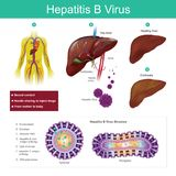 Hepatitis B virus. The virus is mainly transmitted by sexual con. The virus is mainly transmitted by sexual contact, needle sharing to inject drugs and from Royalty Free Stock Photo