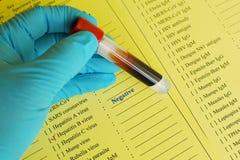 Hepatitis B virus negative Royalty Free Stock Photography