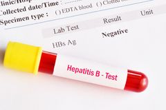 Hepatitis B virus negative test result. With blood sample tube stock images