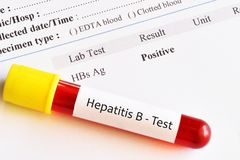 Hepatitis B virus positive test result. With blood sample tube stock photo