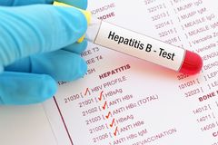 Hepatitis B virus test. Blood sample with requisition form for hepatitis B virus test stock photography
