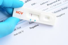 Hepatitis C virus negative test result. By using rapid test cassette royalty free stock photos