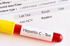 Hepatitis C virus positive test result. With blood sample tube royalty free stock photos