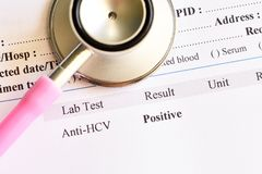 Hepatitis C virus positive test result. Laboratory report with hepatitis C virus positive test result stock photos