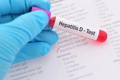 Hepatitis D test. Blood sample for hepatitis D virus test Stock Photos