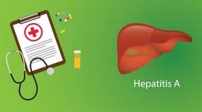 Hepatitis a en hígado con la medicina del microscopio del informe médico Foto de archivo