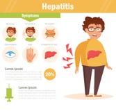 hepatitis Homem com problemas do fígado Imagem de Stock