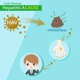 Hepatitis una causa stock de ilustración