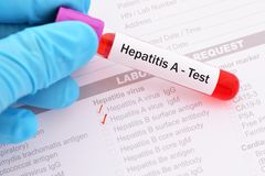 Hepatitis A virus test. Blood sample with requisition form for hepatitis A virus test royalty free stock image