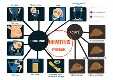 Hepatitissymptomen stock illustratie