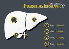 Hepatobiliary Infographic Plan design stock illustrationer