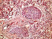 Hepatocellular cancer av lever av en människa royaltyfria foton