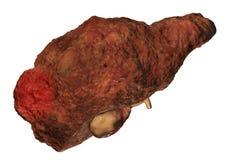 Hepatocellular carcinoma med cirrhos royaltyfri illustrationer