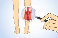 Herein summen Wadenmuskel mit Vergrößerungsglas laut Stockbild