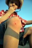 Herida biking del muchacho en rodilla Foto de archivo libre de regalías