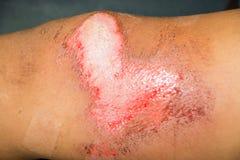 Herida de la abrasión Imagen de archivo libre de regalías