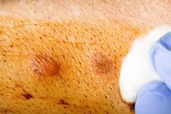 Herida de la limpieza Foto de archivo libre de regalías