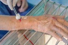 Herida del brazo del hombre Imágenes de archivo libres de regalías