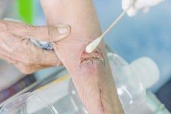 Herida del brazo del hombre Imagen de archivo libre de regalías