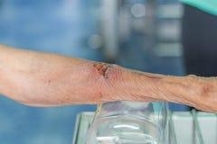 Herida del brazo del hombre Fotografía de archivo libre de regalías