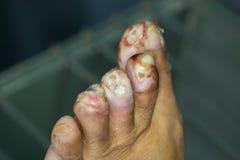 Herida del pie diabético Imágenes de archivo libres de regalías