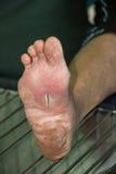 Herida del pie diabético fotografía de archivo libre de regalías