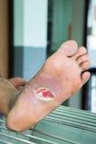 Herida del pie diabético fotografía de archivo
