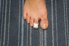 Herida en el dedo del pie de la mujer curado con la tirita Foto de archivo