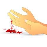 Herida en el ejemplo de la mano Imagenes de archivo