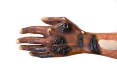 Herida por quemaduras severa Imagen de archivo libre de regalías