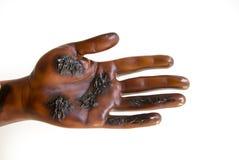 Herida por quemaduras severa Imagen de archivo