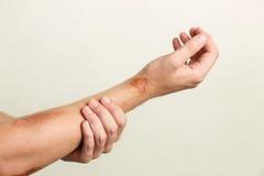Heridas en el brazo del hombre foto de archivo libre de regalías