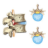HERNIA OF THE DISC - SLIPPED DISC. Schematic drawing of hernia of the disc, slipped disc Royalty Free Stock Photo