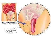 Hernia inguinal Imagen de archivo