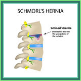 Hernia Schmorl. Intervertebral disc. Side view. Spine. Infographics Vector illustration on isolated background Royalty Free Stock Photo